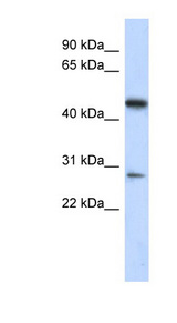 C13orf31 antibody LS-C111484 Western blot of Fetal Lung lysate.  This image was taken for the unconjugated form of this product. Other forms have not been tested.