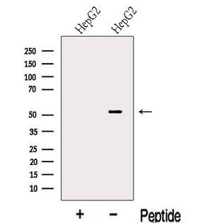 LACTB2 Antibody - Western blot analysis of extracts of HepG2 cells using LACTB antibody. The lane on the left was treated with blocking peptide.