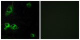 Immunofluorescence analysis of COS7 cells, using LAMA1 Antibody. The picture on the right is blocked with the synthesized peptide.