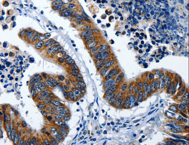 Immunohistochemistry of Human lung cancer using LAMA1 Polyclonal Antibody at dilution of 1:25.