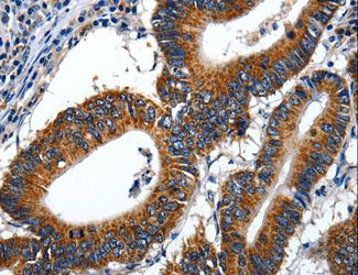 Immunohistochemistry of Human colon cancer using LAMA1 Polyclonal Antibody at dilution of 1:70.