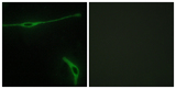 Immunofluorescence analysis of NIH/3T3 cells, using LAMA2 Antibody. The picture on the right is blocked with the synthesized peptide.