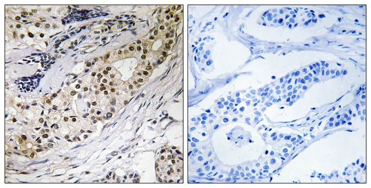 Immunohistochemistry analysis of paraffin-embedded human colon carcinoma tissue, using LAMA3 Antibody. The picture on the right is blocked with the synthesized peptide.