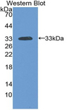 Western blot of recombinant LAMA3 / Laminin Alpha 3.  This image was taken for the unconjugated form of this product. Other forms have not been tested.