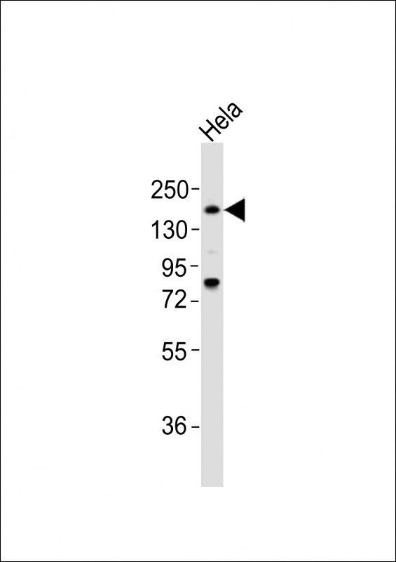 Anti-LAMA4 Antibody at 1:2000 dilution + HeLa whole cell lysates Lysates/proteins at 20 ug per lane. Secondary Goat Anti-Rabbit IgG, (H+L), Peroxidase conjugated at 1/10000 dilution Predicted band size : 203 kDa Blocking/Dilution buffer: 5% NFDM/TBST.