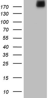 HEK293T cells were transfected with the pCMV6-ENTRY control (Left lane) or pCMV6-ENTRY LAMA4 (Right lane) cDNA for 48 hrs and lysed. Equivalent amounts of cell lysates (5 ug per lane) were separated by SDS-PAGE and immunoblotted with anti-LAMA4.