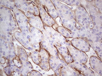 IHC of paraffin-embedded Carcinoma of Human liver tissue using anti-LAMA4 mouse monoclonal antibody. (heat-induced epitope retrieval by 1 mM EDTA in 10mM Tris, pH8.5, 120°C for 3min).