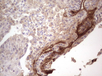 IHC of paraffin-embedded Carcinoma of Human lung tissue using anti-LAMA4 mouse monoclonal antibody. (heat-induced epitope retrieval by 1 mM EDTA in 10mM Tris, pH8.5, 120°C for 3min).