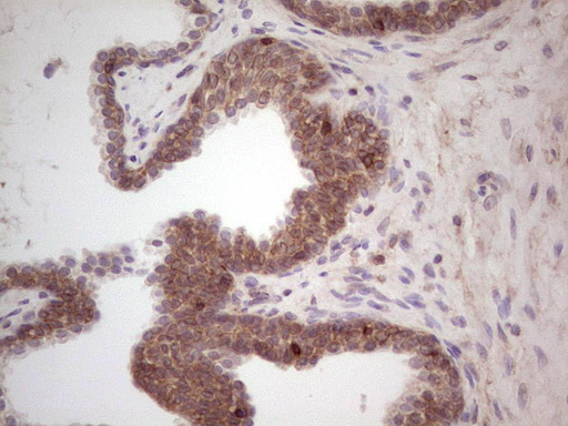 IHC of paraffin-embedded Carcinoma of Human prostate tissue using anti-LAMA4 mouse monoclonal antibody. (heat-induced epitope retrieval by 1 mM EDTA in 10mM Tris, pH8.5, 120°C for 3min).