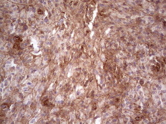 IHC of paraffin-embedded Human lymph node tissue using anti-LAMA4 mouse monoclonal antibody. (heat-induced epitope retrieval by 1 mM EDTA in 10mM Tris, pH8.5, 120°C for 3min).
