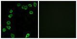 Immunofluorescence analysis of NIH/3T3 cells, using LAMA4 Antibody. The picture on the right is blocked with the synthesized peptide.