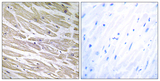 Immunohistochemistry analysis of paraffin-embedded human heart tissue, using LAMA4 Antibody. The picture on the right is blocked with the synthesized peptide.