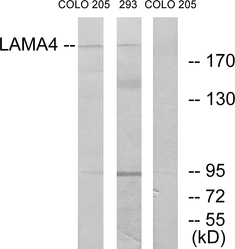 Western blot analysis of lysates from COLO and 293 cells, using LAMA4 Antibody. The lane on the right is blocked with the synthesized peptide.