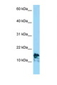 LAMA4 antibody LS-C146216 Western blot of Jurkat Cell lysate. Antibody concentration 1 ug/ml.  This image was taken for the unconjugated form of this product. Other forms have not been tested.