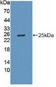 Western Blot; Sample: Recombinant LAMa4, Mouse.