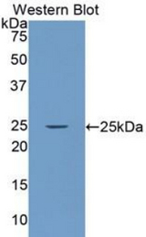 Western blot of recombinant LAMA4 / Laminin Alpha 4.  This image was taken for the unconjugated form of this product. Other forms have not been tested.