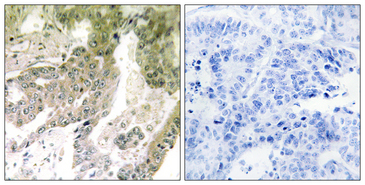 Immunohistochemistry analysis of paraffin-embedded human lung carcinoma tissue, using LAMA5 Antibody. The picture on the right is blocked with the synthesized peptide.