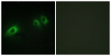 Immunofluorescence analysis of HeLa cells, using LAMB1 Antibody. The picture on the right is blocked with the synthesized peptide.
