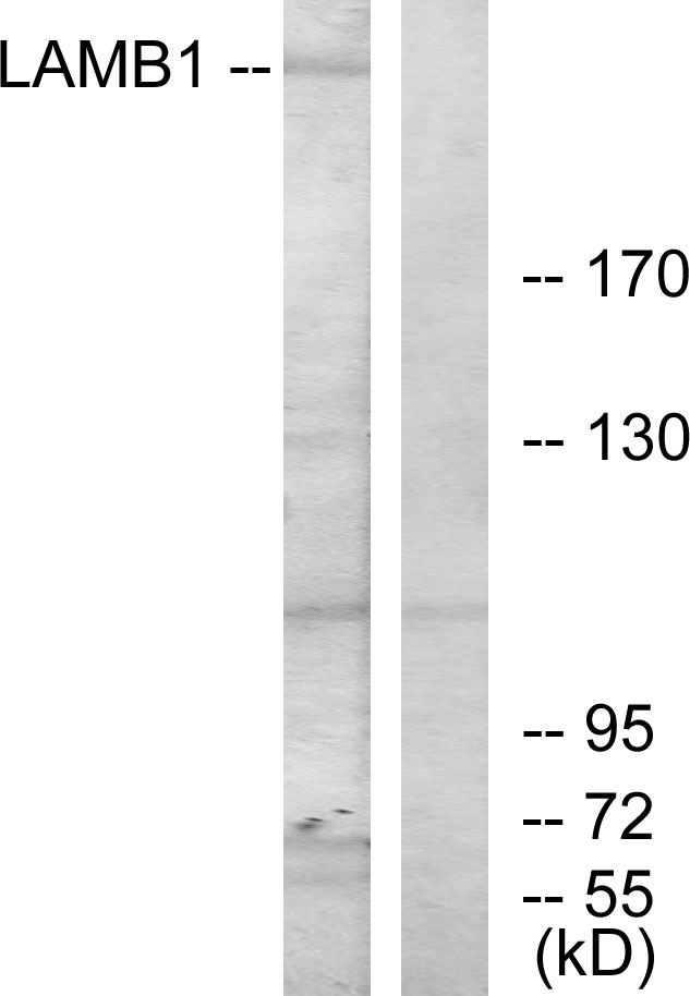 Western blot analysis of lysates from HepG2 cells, using LAMB1 Antibody. The lane on the right is blocked with the synthesized peptide.