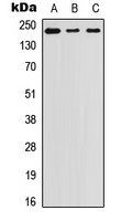 Western blot analysis of Laminin beta 1 expression in A431 (A); SW480 (B); PC3 (C) whole cell lysates.