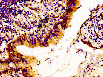 Immunohistochemistry image of paraffin-embedded human lung cancer at a dilution of 1:100