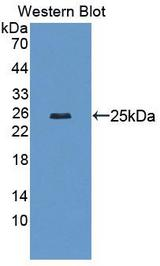 Western blot of LAMCb2