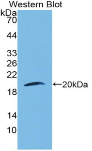 Western blot of recombinant LAMB3 / Laminin Beta 3.