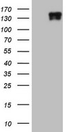 HEK293T cells were transfected with the pCMV6-ENTRY control (Left lane) or pCMV6-ENTRY LAMB3 (Right lane) cDNA for 48 hrs and lysed. Equivalent amounts of cell lysates (5 ug per lane) were separated by SDS-PAGE and immunoblotted with anti-LAMB3.