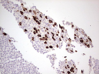 IHC of paraffin-embedded Human tonsil using anti-LAMB3 mouse monoclonal antibody. (Heat-induced epitope retrieval by 1 mM EDTA in 10mM Tris, pH8.5, 120°C for 3min).