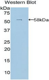 Western blot of recombinant LAMB3 / Laminin Beta 3.  This image was taken for the unconjugated form of this product. Other forms have not been tested.