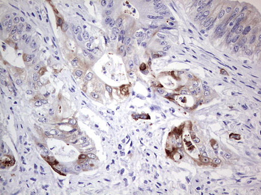IHC of paraffin-embedded Adenocarcinoma of Human colon tissue using anti-LAMB3 mouse monoclonal antibody. (Heat-induced epitope retrieval by 1 mM EDTA in 10mM Tris, pH8.5, 120°C for 3min).