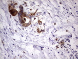 IHC of paraffin-embedded Carcinoma of Human pancreas tissue using anti-LAMB3 mouse monoclonal antibody. (Heat-induced epitope retrieval by 1 mM EDTA in 10mM Tris, pH8.5, 120°C for 3min).