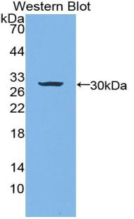 Western blot of recombinant LAMB3 / Laminin Beta 3.