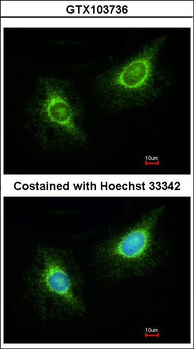 Immunofluorescence of methanol-fixed HeLa using Laminin beta 3 antibody at 1:200 dilution.