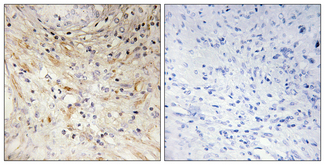 Immunohistochemistry analysis of paraffin-embedded human prostate carcinoma tissue, using LAMB3 Antibody. The picture on the right is blocked with the synthesized peptide.