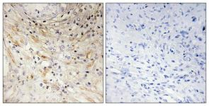 IHC of paraffin-embedded human prostate carcinoma tissue, using LAMB3 Antibody. The picture on the right is treated with the synthesized peptide.