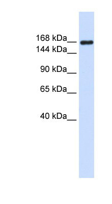 LAMC1 / Laminin Gamma 1 antibody Western blot of Placenta lysate. This image was taken for the unconjugated form of this product. Other forms have not been tested.
