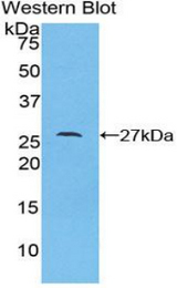 Western blot of recombinant LAMC1 / Laminin Gamma 1.  This image was taken for the unconjugated form of this product. Other forms have not been tested.