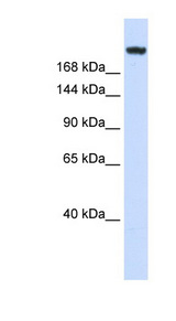 LAMC1 / Laminin Gamma 1 antibody Western blot of Fetal Muscle lysate. This image was taken for the unconjugated form of this product. Other forms have not been tested.