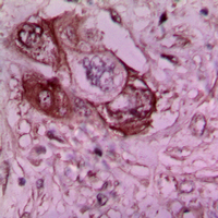Immunohistochemical analysis of Laminin gamma 1 staining in human breast cancer formalin fixed paraffin embedded tissue section. The section was pre-treated using heat mediated antigen retrieval with sodium citrate buffer (pH 6.0). The section was then incubated with the antibody at room temperature and detected using an HRP conjugated compact polymer system. DAB was used as the chromogen. The section was then counterstained with hematoxylin and mounted with DPX.