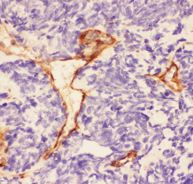 Laminin antibody IHC-paraffin: Human Lung Cancer Tissue.