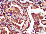 Immunohistochemistry image at a dilution of 1:200 and staining in paraffin-embedded human lung cancer performed on a Leica BondTM system. After dewaxing and hydration, antigen retrieval was mediated by high pressure in a citrate buffer (pH 6.0) . Section was blocked with 10% normal goat serum 30min at RT. Then primary antibody (1% BSA) was incubated at 4 °C overnight. The primary is detected by a biotinylated secondary antibody and visualized using an HRP conjugated SP system.