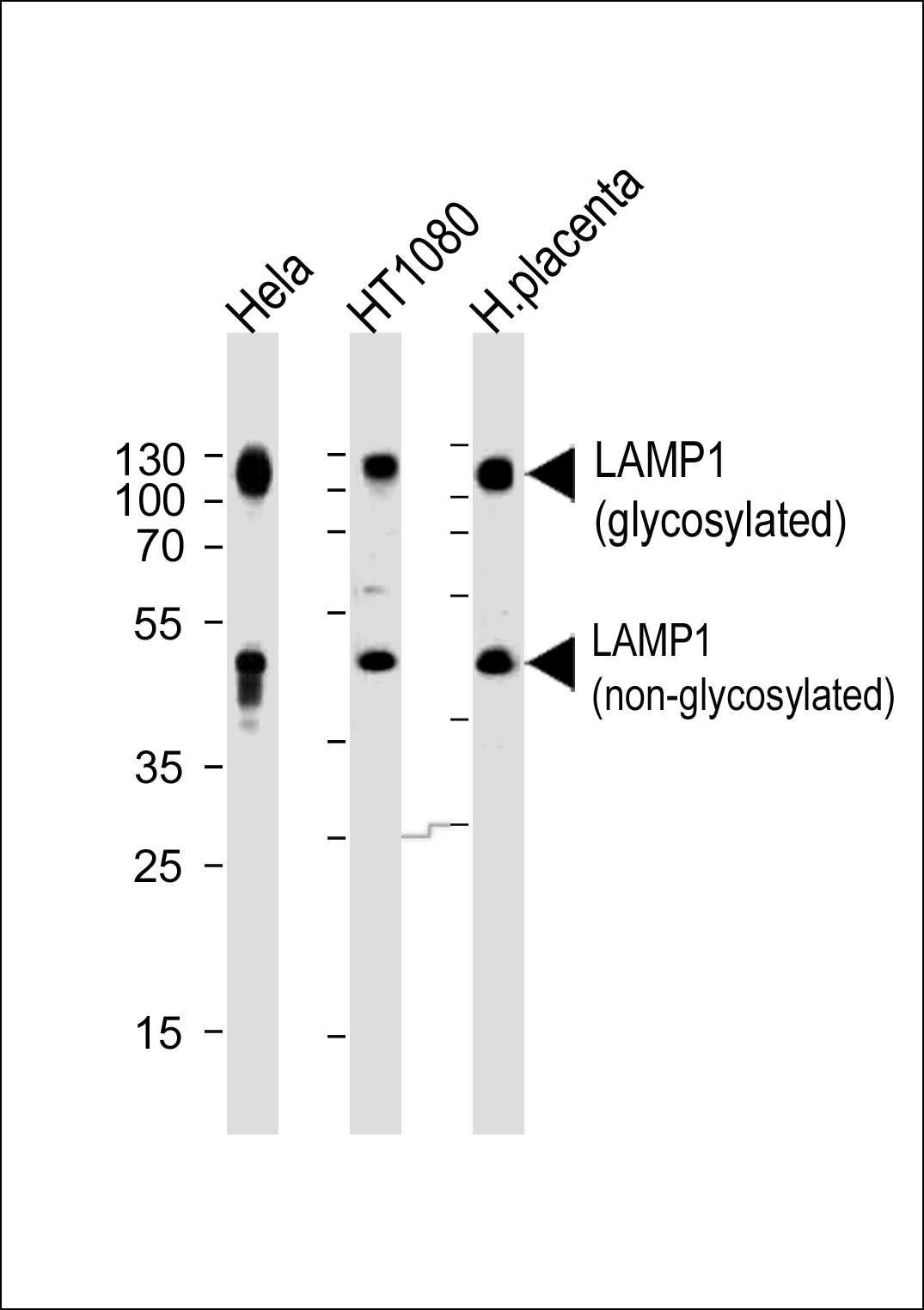 Western blot analysis of lysates from Hela,HT1080 cell line and human placenta tissue (from left to right),using LAMP1 Antibody (N-term). Anti-LAMP1 was diluted at 1:1000 at each lane. A goat anti-rabbit IgG H&L (HRP) at 1:5000 dilution was used as the secondary antibody. Lysates at 35ug per lane.