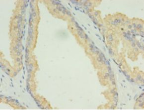 Immunohistochemistry of paraffin-embedded human prostate cancer using antibody at 1:100 dilution.  This image was taken for the unconjugated form of this product. Other forms have not been tested.