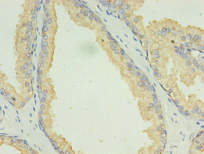 Immunohistochemistry of paraffin-embedded human prostate cancer using LAMP2 Antibody at dilution of 1:100