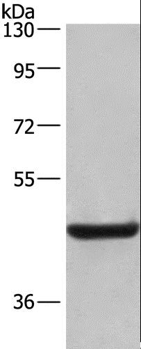 Western blot analysis of Human placenta tissue, using LAMP2 Polyclonal Antibody at dilution of 1:500.
