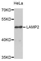 Western blot analysis of extracts of HeLa cells.