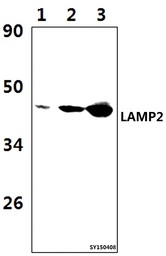 Western blot of LAMP2 antibody at 1:1000 dilution. Lane 1: A549 whole cell lysate (57ug). Lane 2: The Lung tissue lysate of Rat (39ug). Lane 3: The Lung tissue lysate of Mouse (39ug).