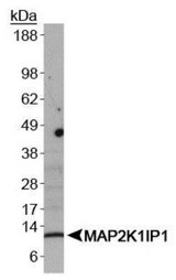 Western Blot: MAP2K1IP1/MAPKSP1 Antibody - WB detection of MAP2K1IP1 in A431 whole cell lysates.  This image was taken for the unconjugated form of this product. Other forms have not been tested.