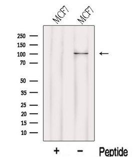 LARS2 / LEURS1 Antibody - Western blot analysis of extracts of MCF-7 cells using LARS2 antibody. The lane on the left was treated with blocking peptide.